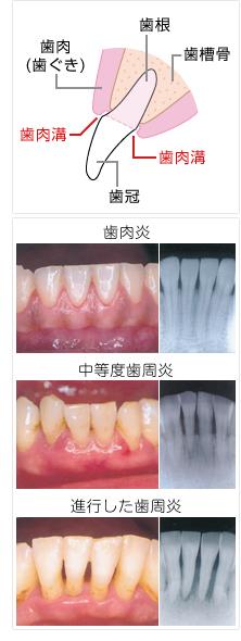歯肉 炎 治療